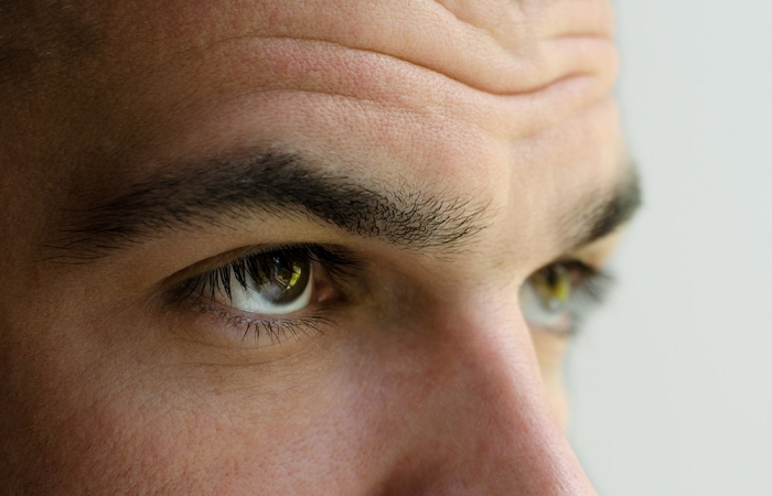 correccion-arrugas-clinica-estetica-hombre-clever-man-sevilla