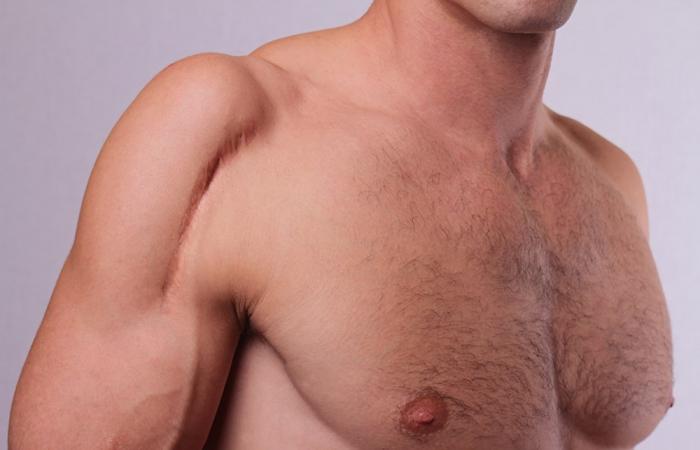 eliminacion-cicatrices-verrugas-clinica-estetica-hombre-clever-man-sevilla