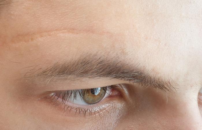 eliminacion-verrugas-cicatrices-clinica-estetica-hombre-clever-man-sevilla