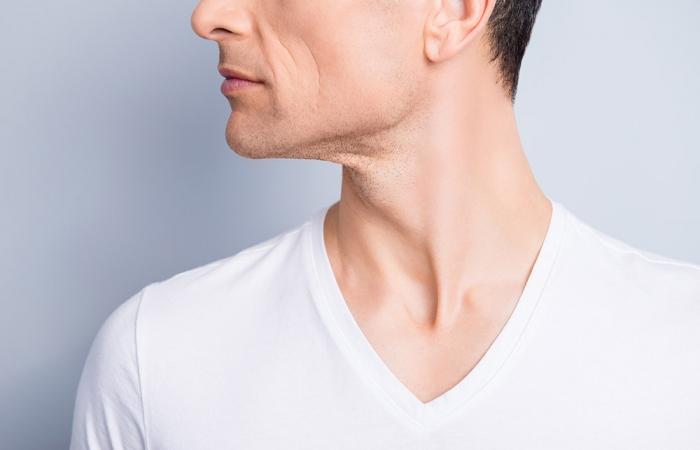 flacidez-cuello-papada-clinica-estetica-hombre-clever-man-sevilla