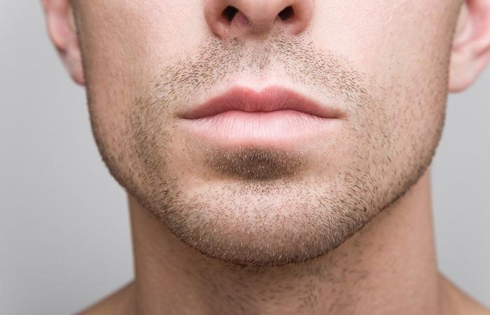 labios-correccion-simetria-clinica-estetica-hombre-clever-man-sevilla