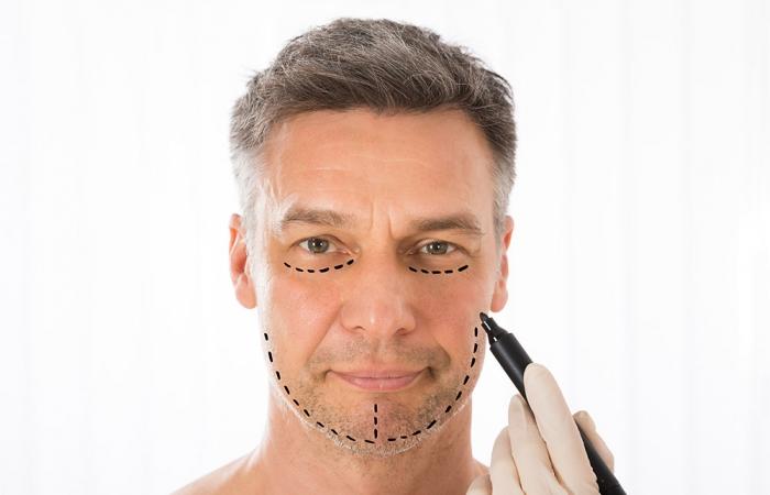 lifting-facial-clinica-estetica-hombre-clever-man-sevilla